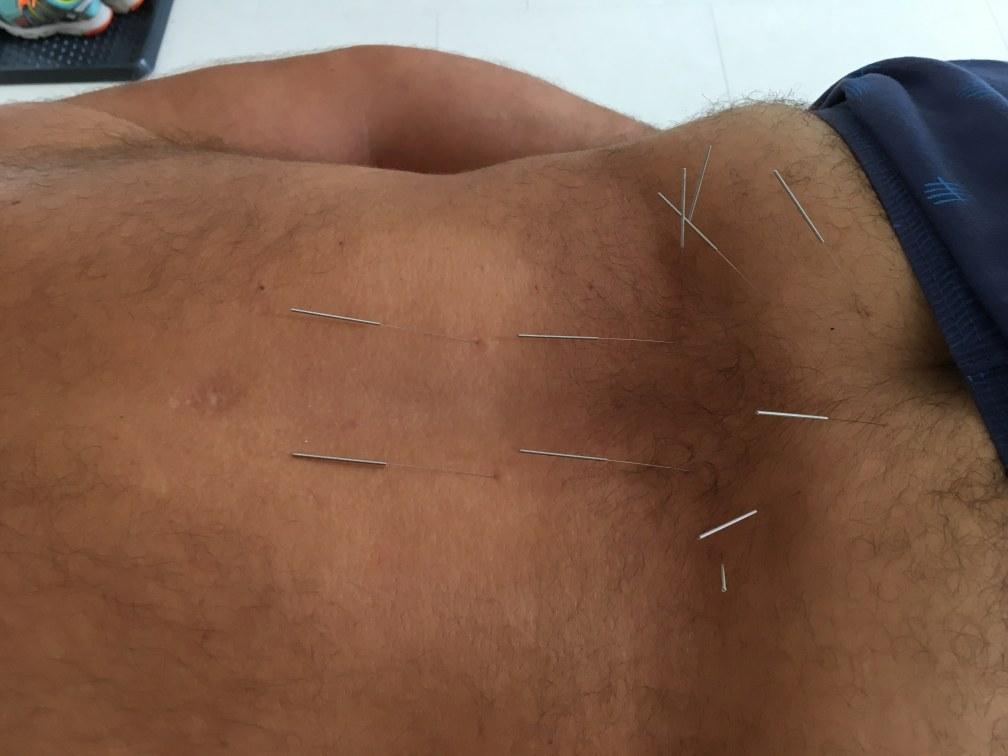 Prvá skúsenosť s akupunktúrou